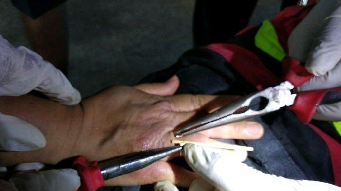 Terlalu Lama Pakai Cincin, Hotline Manalu Datangi Mako Pemadam Kebakaran Kota Cimahi