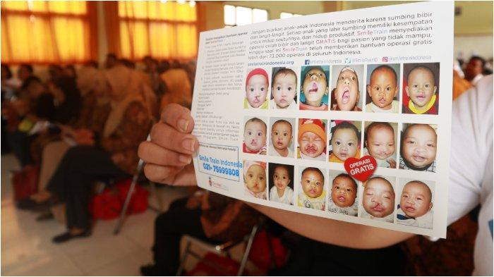 Tiap Tahun di Indonesia, Lahir Hingga 9.000 Bayi dalam Kondidi Bibir Sumbing