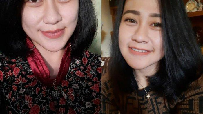 SOSOK Eva Sofiana, Perawat Cantik di Malang yang Tiba-tiba Dibakar Orang Tak Dikenal Saat Istirahat