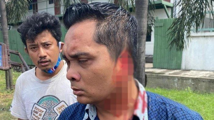 Jengkel Sampai Ubun-ubun, Rizal Gigit Telinga Kondektur Bus Sampai Putus, Korban Menjerit Kesakitan