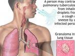 tuberculosis_20171210_174133.jpg