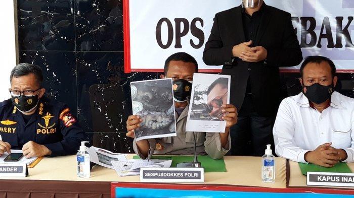 2 Jenazah Korban Kebakaran Lapas Tangerang Teridentifikasi Lewat Gigi
