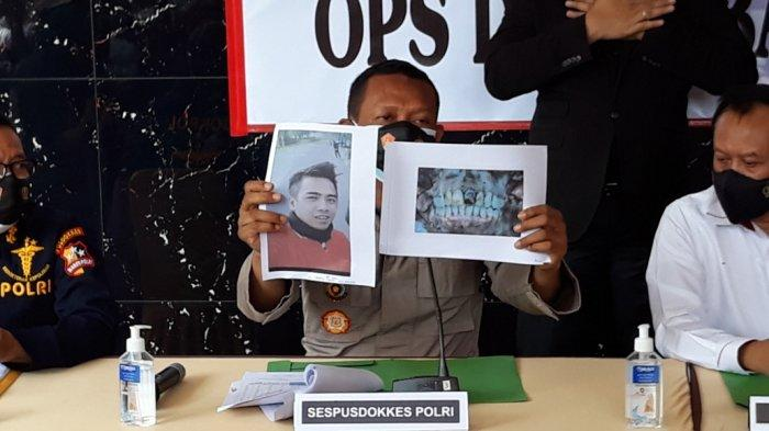 Konsultan Operasi DVI Kebakaran Lapas Tangerang, Kombes Pramujoko saat menunjukkan peta medis hasil identifikasi jenazah di RS Polri Kramat Jati, Jakarta Timur, Senin (13/9/2021).