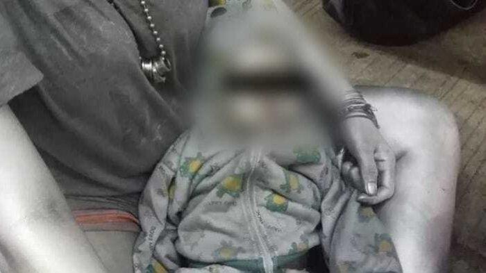 Miris! Bayi 10 Bulan di Tangsel Jadi Manusia Silver, Sehari-hari Minum Susu Kental Manis