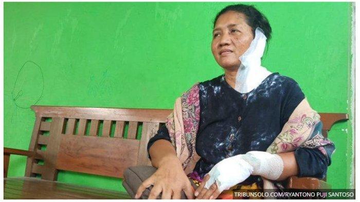 Ibu di Boyolali Jadi Korban Penyiraman Air Keras, Keluarga Akui Trauma hingga Anak Tak Mau Sekolah