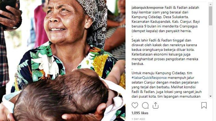 Kembar Siam Fadli dan Fadlan Menderit Dempet Kepala: Diurus Kakek Nenek dan Kini Terjangkit Hernia