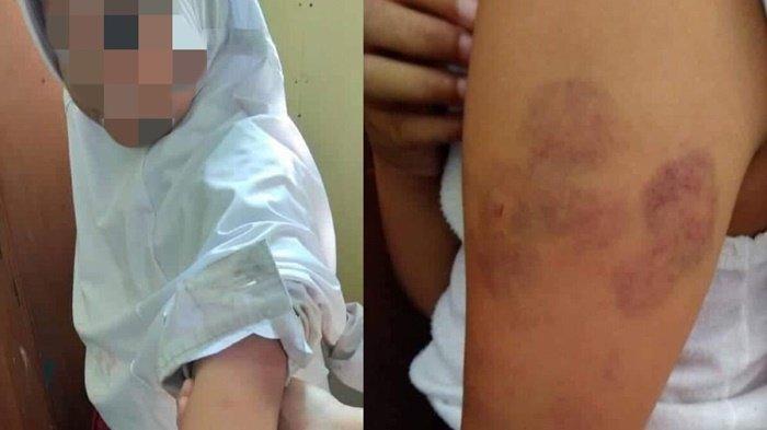 Viral Gadis 8 Tahun Dianiaya Ibu Tiri di Kutai, Lengan Dipenuhi Luka Lebam