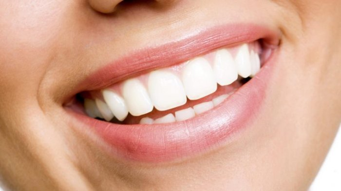 Cara Alami Membersihkan Karang Gigi Tanpa ke Dokter, Pakai 5 Obat Tradisional Ala Rumahan Ini