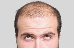 Keseringan Pakai Topi Bisa Bikin Rambut Rontok dan Botak? Begini Penjelasnnya