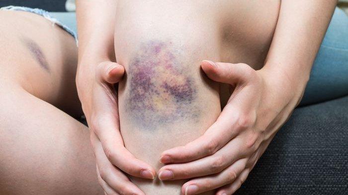 Ilustrasi luka lebam pada tubuh