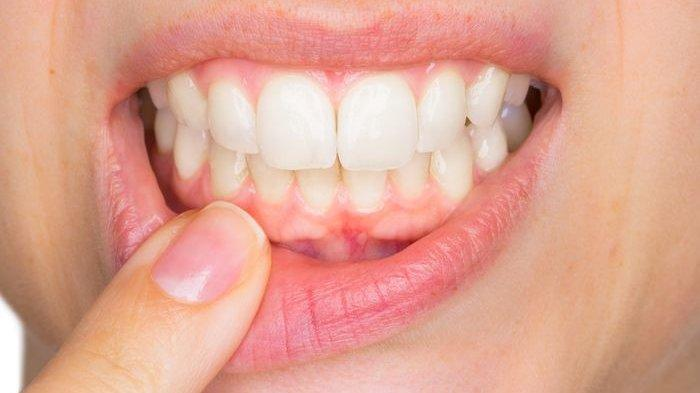 Pakai 5 Ramuan Tradisional Ini untuk Bersihkan Karang Gigi Secara Alami, Tertarik?