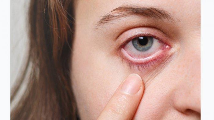7 Obat Tradisional untuk Mengatasi Sakit Mata, Apa Saja?