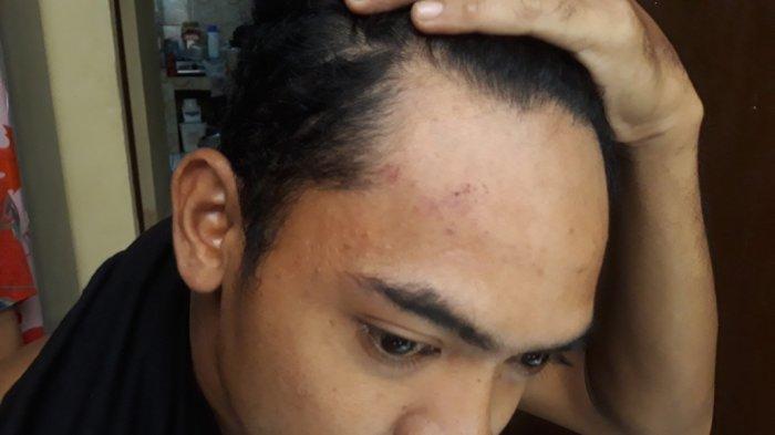 Indra Hatta (31), korban dugaan penganiayaan dilakukan oknum anggota TNI AD saat menunujukkan bekas luka akibat dianiaya, Kramat Jati, Jakarta Timur, Jumat (20/8/2021).