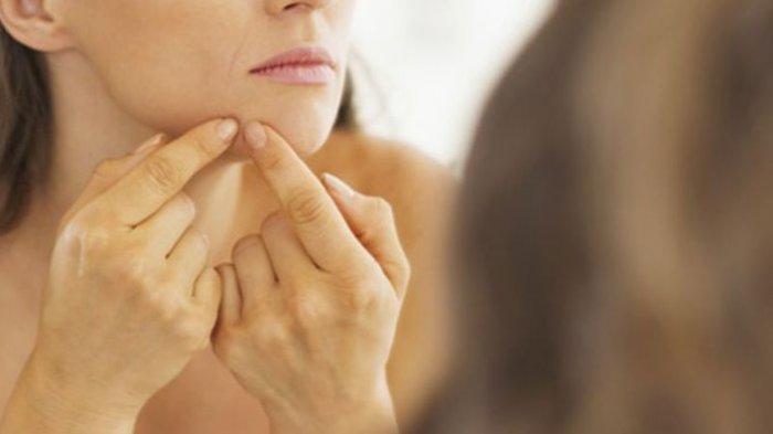 Bekas Jerawat Bikin Ganggu? Coba 7 Obat Tradisional Ini untuk Hilangkan Bopeng di Wajah