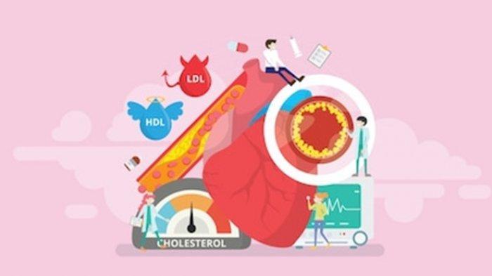 8 Cara Menurunkan Kolesterol Tinggi Secara Alami, Ramuan Tradisional Ini Bisa Jadi Solusi