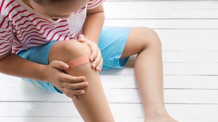 7 Obat Tradisional Ampuh Sembuhkan Luka Borok Koreng, Aman Digunakan pada Anak