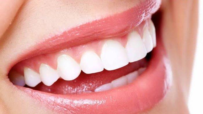 Cara Memutihkan Gigi Kuning Secara Alami, Yuk Coba 6 Obat Tradisional Ini