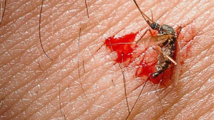 Cara Ampuh Usir Nyamuk, Bisa Pakai Bawang Putih dan 4 Bahan Ini