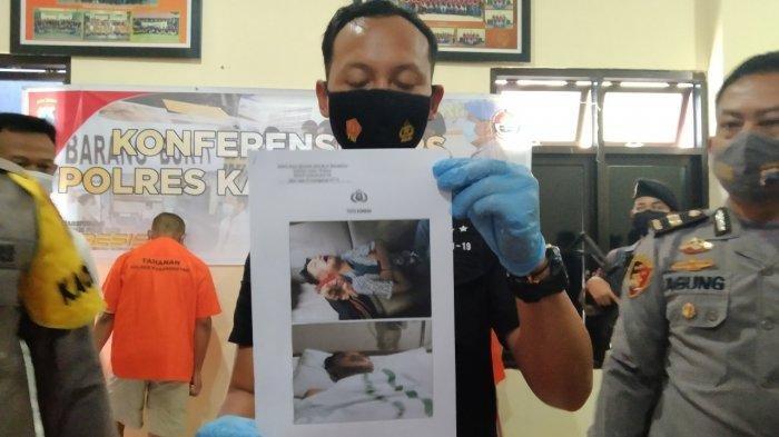 Polisi menunjukan foto korban yang mengalami patah tulang rahang dan pendarahan di otak akibat burung love bird.