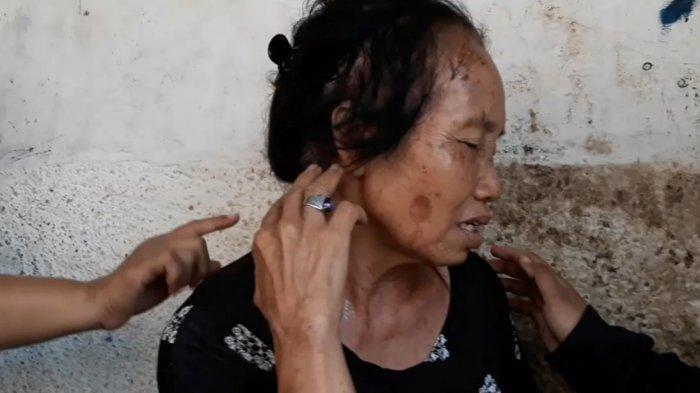 Lansia Korban Penyiraman Cairan Kimia Beberkan Ciri-ciri Pelaku