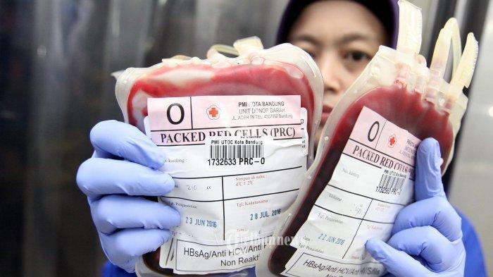 PMI Sediakan Layanan Jemput-Antar Gratis Donor Plasma Konvalesen, Ini Syaratnya Bagi Pendonor