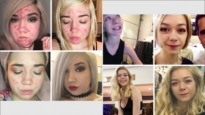 10 Foto Transformasi yang Akan Membuatmu Terkesima Jika Melihatnya, Sangat Menakjubkan