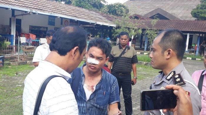 BREAKING NEWS Laporkan Calo di Satpas SIM Daan Mogot, Seorang Wartawan Dikeroyok Hingga Babak Belur