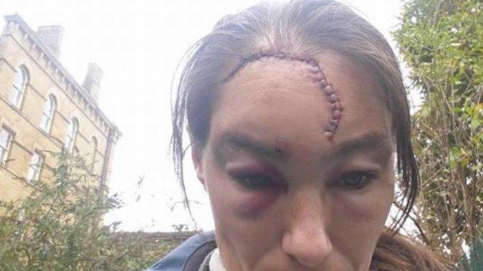 Kepala Wanita Ini Alami Luka Serius, Setelah Diserang Pria Tak Dikenal di Jalan