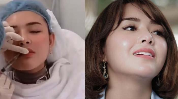 Video Menyakitkan Amanda Manopo saat Permak Bibir, Perhatikan di Ikatan Cinta Terbaru