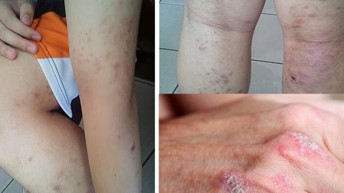 Alami Gatal-gatal pada Kulit Karena Alergi dan Iritasi? Ini Cara Mengobatinya!
