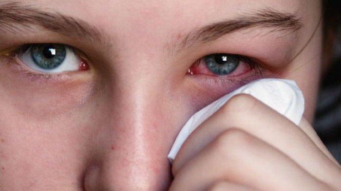 Mata Merah Gejala Corona, Peneliti Amerika Paparkan Hasil Temuannya, Anda Sebaiknya Tahu Ini