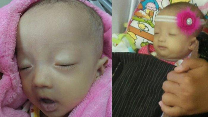 Meninggalnya Bayi Debora, Menurut Kepala Dinas Kesehatan DKI Jakarta RS Harusnya Lakukan Ini