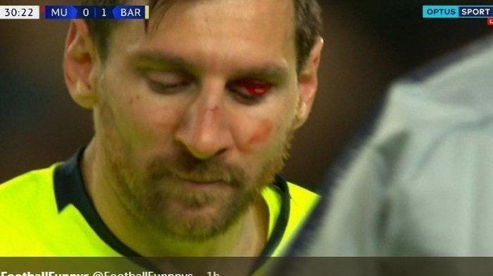Video Mata Lionel Messi Berdarah Dihantam Bek Raksasa Manchester United