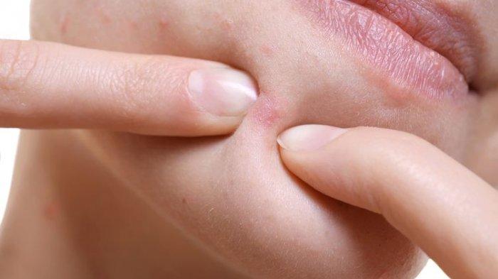 Cara Mengatasi Jerawat Hormonal, Cari Tahu Penyebab dan Ciri-cirinya