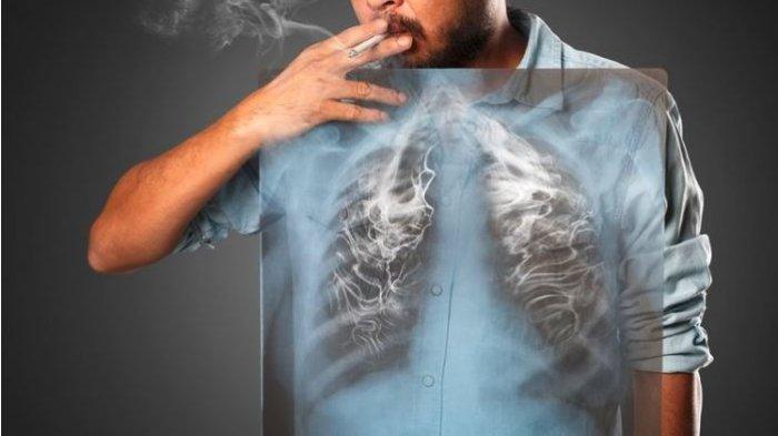 Benarkah Virus Corona Bisa Menyebar Lewat Asap Rokok? Begini Penelitiannya