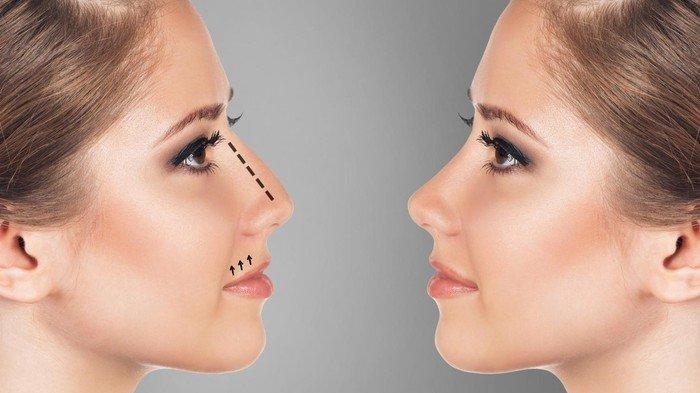 Bentuk Hidungmu Perlihatkan Kepribadianmu - Hidung Lurus, Bengkok, Melengkung, Pengait?
