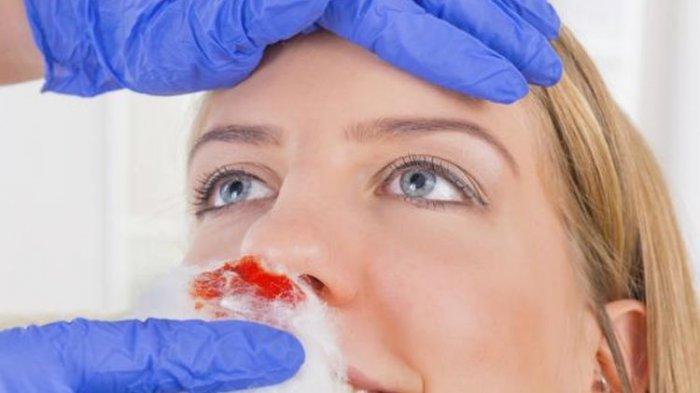 Cara Mengatasi Mimisan, Jangan Menyumpal Hidung dengan Kapas atau Tisu!