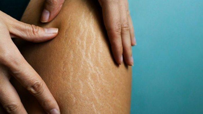 Cara Menghilangkan Stretch Mark di Paha dengan Losion Kaya Vitamin untuk Menjaga Kelembapan Kulit