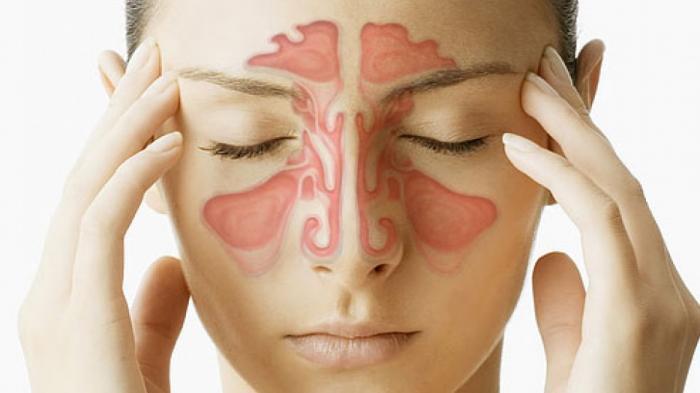 Cara Mengobati Sinusitis dengan Bahan Alami - Hirup Uap Bawang Merah, Cuka Apel, Jahe, Kunyit