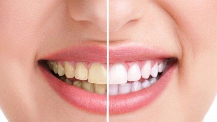 Inilah Kebiasaan Sehari-hari yang Mempengaruhi Kesehatan Gigi