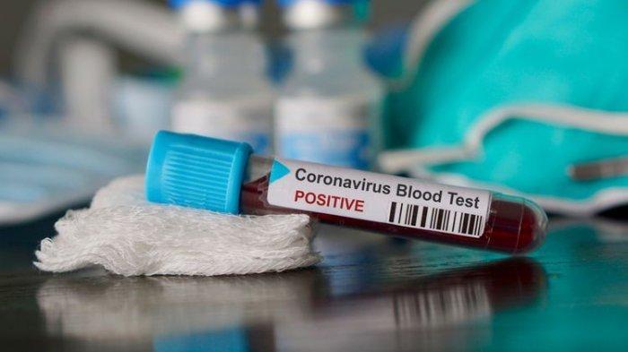 2 Merangin dan 1 Kota Jambi, Ini Identitas 3 Pasien Positif Virus Corona Baru di Provinsi Jambi