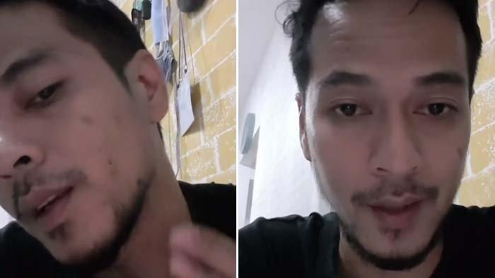 Lihat Pemeran Pria di Video Syur Mirip Gisel, Adhietya Mukti Tunjukkan Tahi Lalatnya (Instagram @adhietya_mukti)