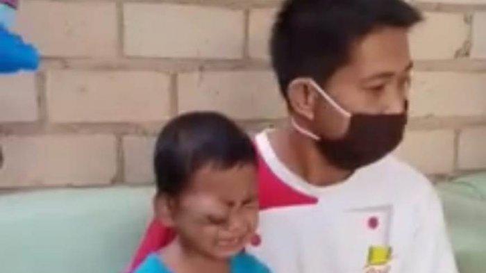 Amar Bocah 4 Tahun di Sungai Penuh Butuh Uluran Tangan, Idap Tumor Kaku dan Kanker Mata
