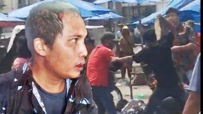 Rebutan Lahan Parkir, Ormas Pemuda Pancasila-AMPI Bentrok di Pasar Hingga Kepala Pecah dan Berdarah