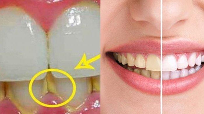 Cara menghilangkan plak atau karang gigi