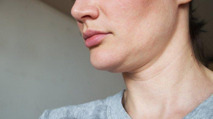 Cara Mengatasi Double Chin dengan Mengetahui Penyebabnya, Tak Melulu Soal Berat Badan