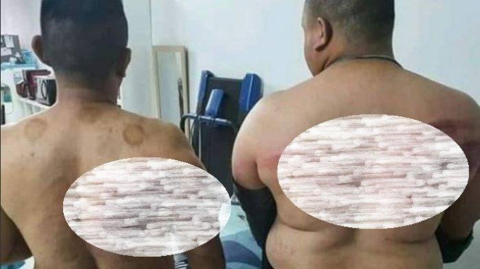 Dua Bodyguard Babak Belur Dianiaya Majikannya, Ditodong Pistol Disuruh Batalkan Puasa Ramadan