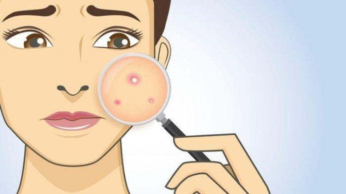 Tips Cara Menghilangkan Jerawat Dan Komedo Di Wajah Dengan Bahan Bahan Alami Ini Mudah Dan Praktis Tribun Jambi