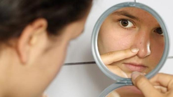 Cara Menghilangkan Bekas Jerawat, Termasuk Pakai Skincare yang Mengandung Vitamin C