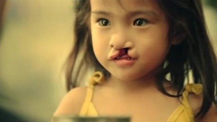 Kisah Gadis Cilik yang Terlahir Sumbing dan Dibuang Orangtuanya, Lihat Saat Dia Dewasa Jadi Cantik